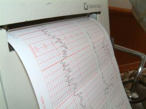 Reflux és szívritmuszavar