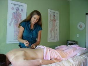 Reflux akupunktúra