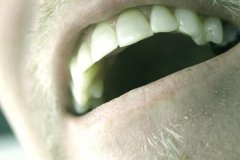 Reflux fogak