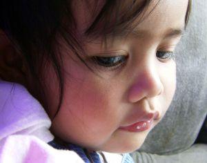 Reflux tünetei gyerekeknél